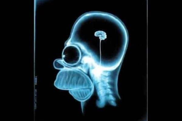 Homer SImpson Brainless