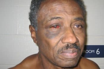 Herman Bell after beat-down