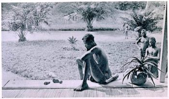 Father stares at the hand and foot of his five year-old daughter, which were severed as a punishment for having harvested too little caoutchouc/rubber. (Photo taken at Baringa, Congo state, May 15, 1904)