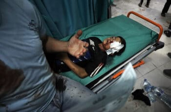 A wounded boy lies on a stretcher following an Israeli attack in Beit Lahiya, Gaza, May 10, 2021. Mohammed Ali   AP